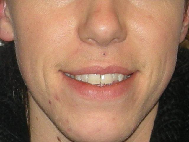 voor-acnebehandeling