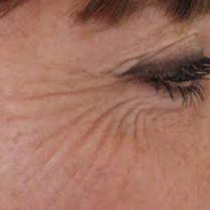 gezicht pigmentvlekken rimpels verwijderen