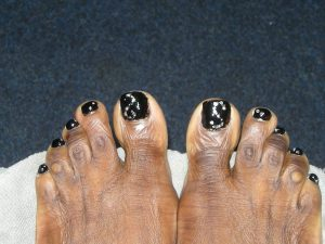 voeten en huid
