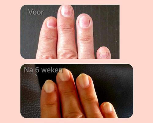 bionaial-voor-en-na-foto